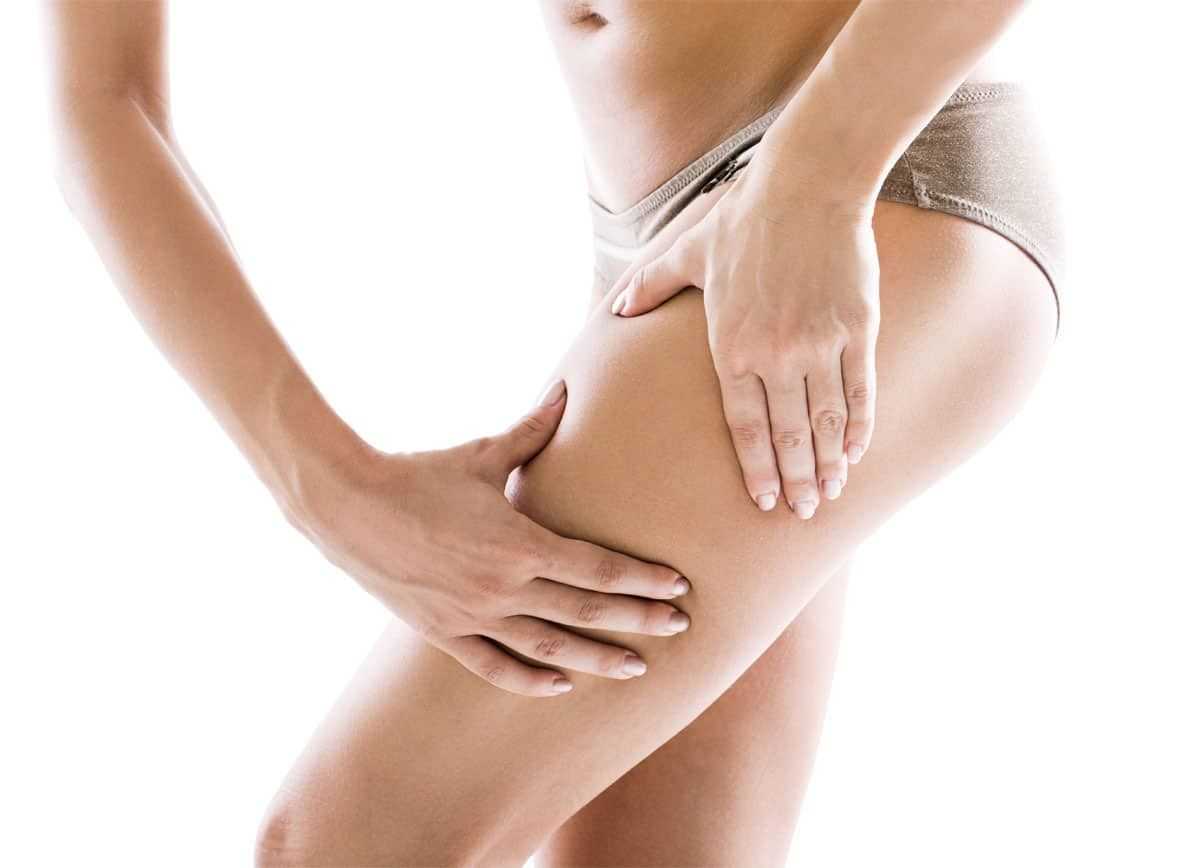 cellulite myths