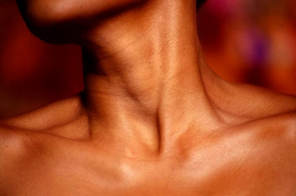 decolletage, sun damage
